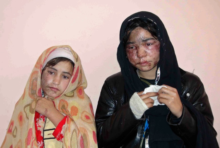 Members of a family receive treatment at a hospital after being attacked with acid at their home by unknown gunmen in Kunduz